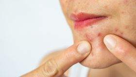 Close-up of woman pointing acne inflammation (Papule and Pustule) on her face.